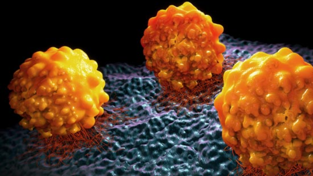 Bacterial Protein Promotes Cancer