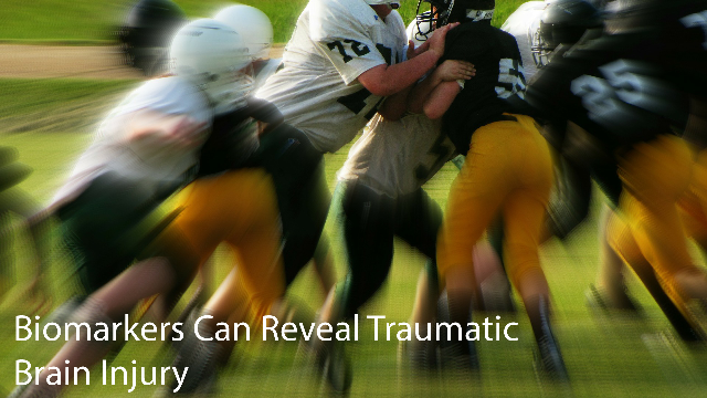 Biomarkers Can Reveal Tramautic Brain Injury