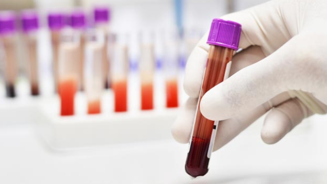 Blood Test Detects and Classifies Cancer at its Earliest Stages