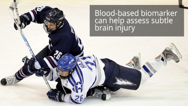 Blood Test To Determine When It Is Safe To Return To Play After A Sports-related Concussion