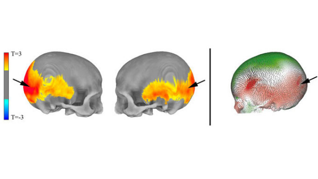 Brain Regions Implicated in Mental Disorders Influenced by Neanderthal Genes