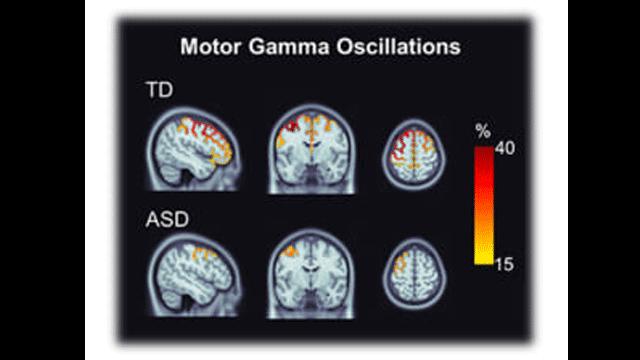 Brainwave Activity Alterations Shown in Autistic Children