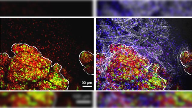 Breast Cancer Controlled By Genetic Master Switch
