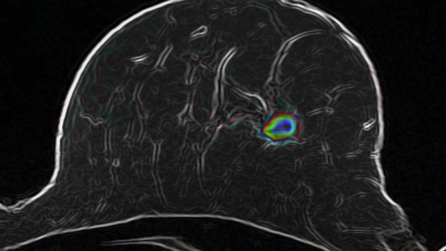 Breast Cancer: How Advanced Imaging Technologies Will Help Avoid Unnecessary Biopsies