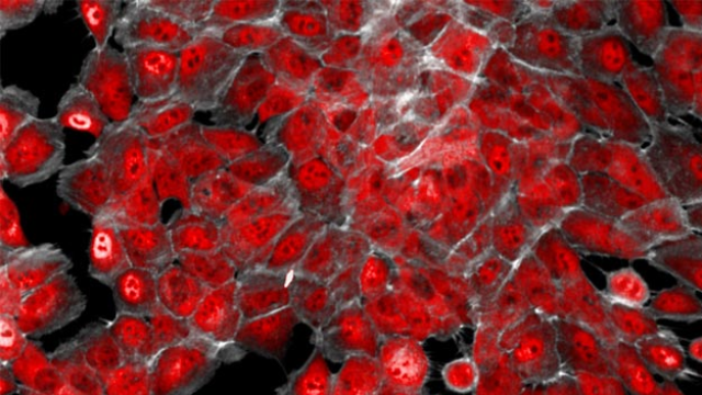 Breast Cancer Vulnerability Could Be Exploited by Future Targeted Drugs