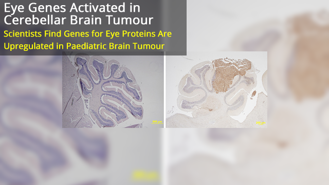 Can Genes Normally Only Expressed in the Eye be Activated in Brain Tumours?