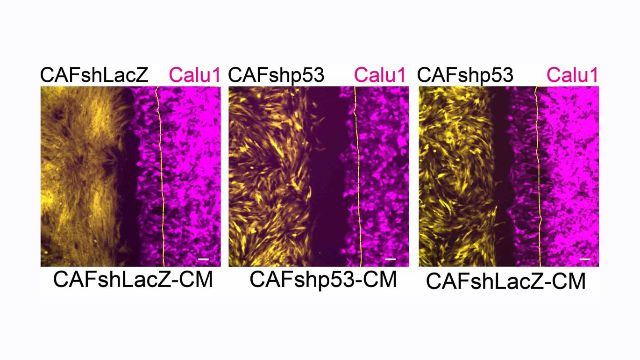 Cancer Causes Cell Defense Protein to Switch Sides