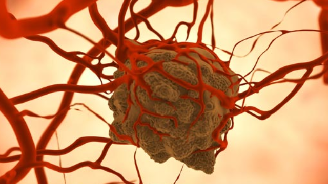 Cancer Therapy Strategy Spells Double Trouble for Tumors