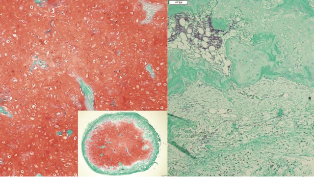 Cartilage Cultivated From Stem Cells