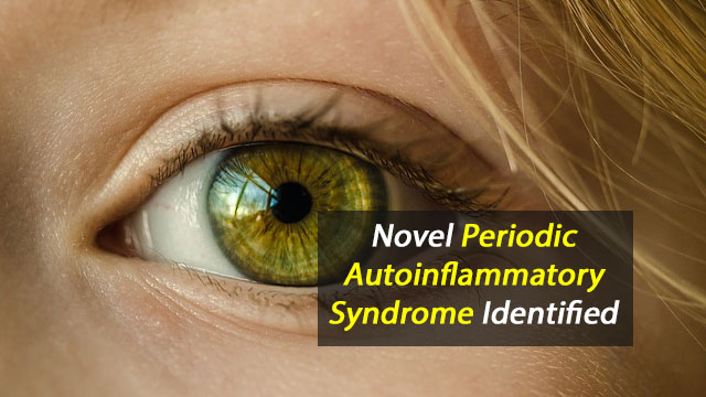 Cause of Corneal Autoinflammatory Condition Identified