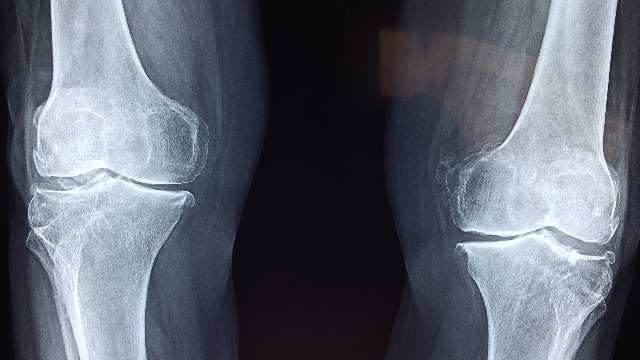 Cell Technology Used to Treat Osteochondral Knee Defect