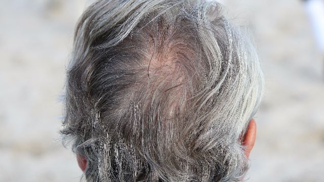 Cells Responsible for Gray Hair and Balding Identified