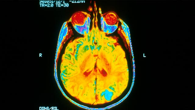 Compound Could Target Protein Linked to Childhood Brain Cancer
