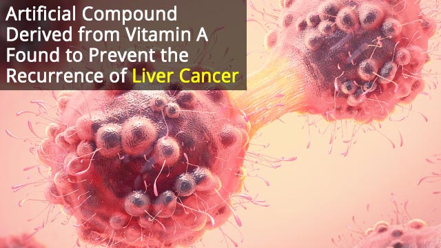 Compound Selectively Kills Liver Cancer Stem Cells