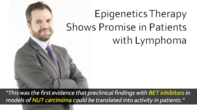Compounds Targeting Epigenetics Show Promise in Lymphoma Patients