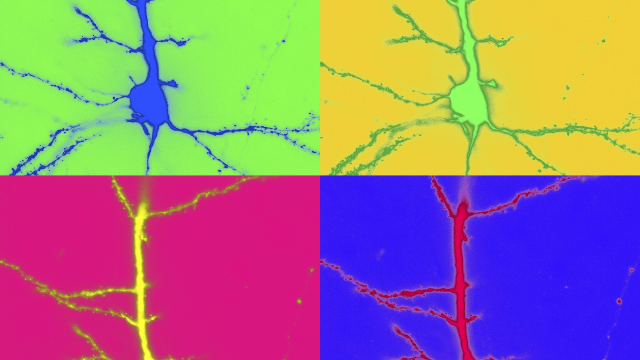 Confocal Micrograph of Layer 2/3 Pyramidal Neuron