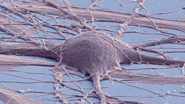 Created Line Of Spinal Cord Neural Stem Cells Shows Diverse Promise