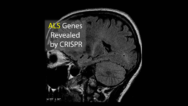 CRISPR Scans Entire Human Genome For ALS Mutations in Just Two Weeks