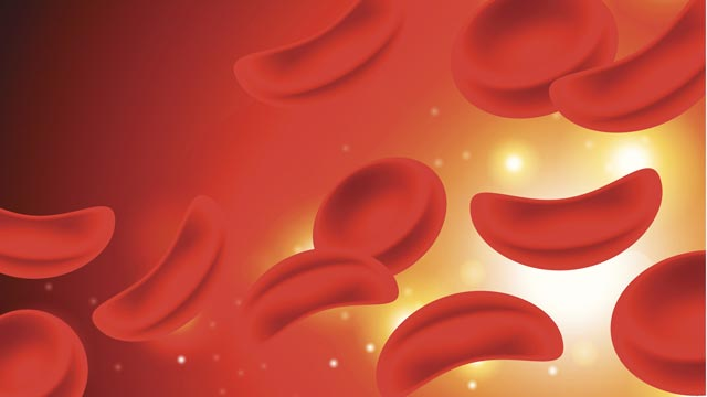 CRISPR Screening Reveals Drug Target for Sickle Cell Disease