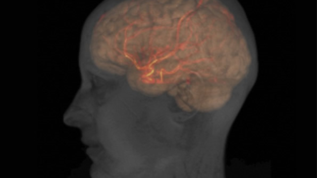 Reduced blood flow seen in brain after clinical recovery of acute concussion