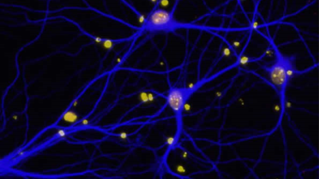 DNA repair factor linked to breast cancer may also play a role in Alzheimer's disease