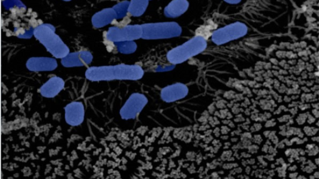 Finnish study establishes connection between gut microbiota and Parkinson's disease