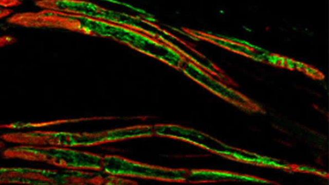 Study offers approach to treating pain