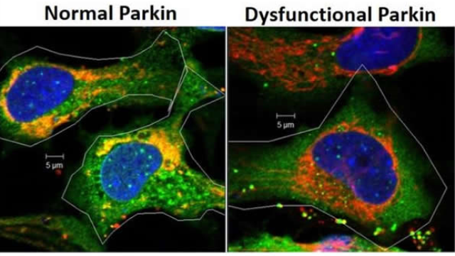 Study first to show role of Parkin gene in eye lens free radical formation, cell survival