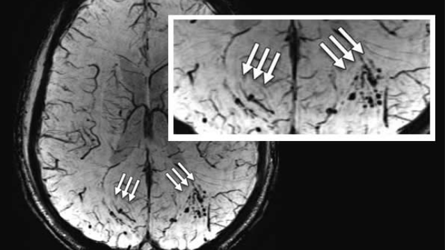 MRI shows 'brain scars' in military personnel with blast-related concussion