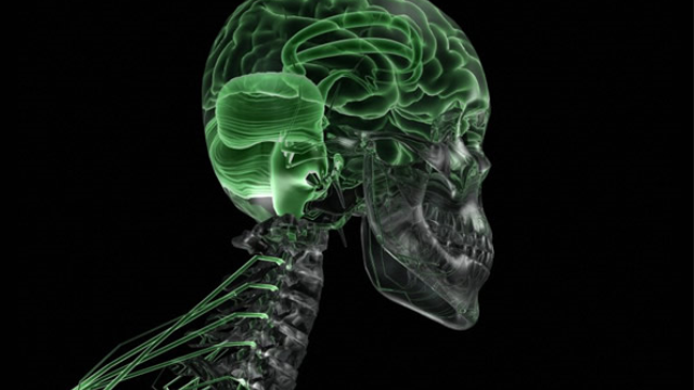Study: Autism brain response theory a dead end