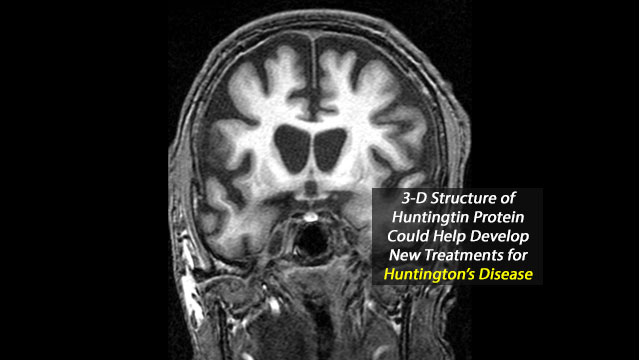 Decoding the 3-D Structure of Huntingtin