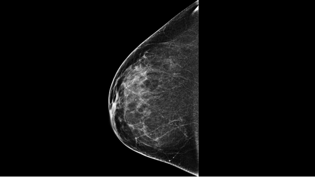 Deep Learning Catches Out False Positive Mammograms