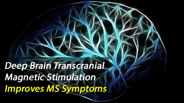 Deep Transcranial Magnetic Stimulation Reduces Symptoms of Fatigue in MS Patients