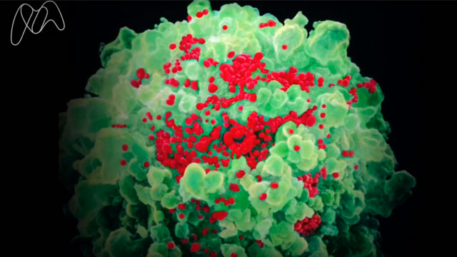 Developing an HIV vaccine
