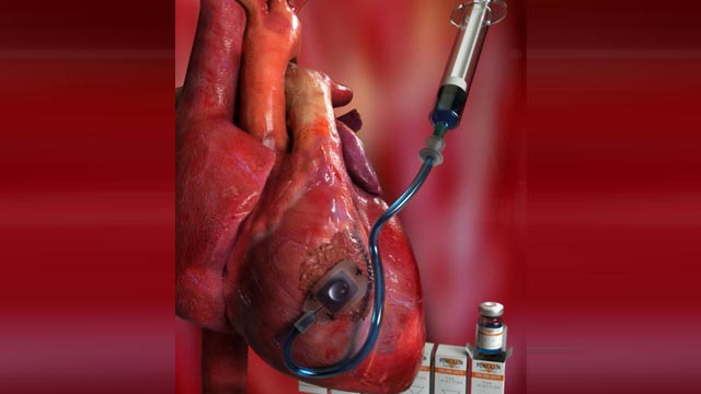 Device Delivers Drugs Straight to the Heart