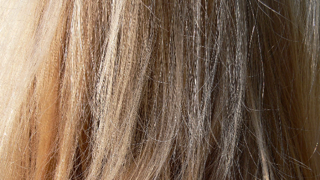 Diagnosing Cushing Syndrome with Hair Analysis
