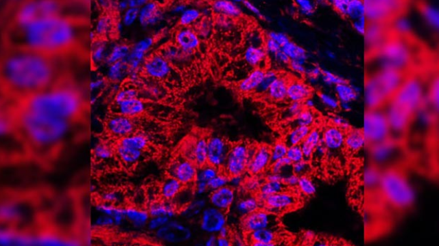 Drug Blocks Pancreatic Cancer Growth in Mice