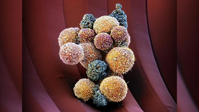 Drug Suppresses Formation of Metastases