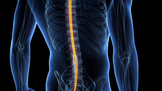 "Electrical Implant Reduces ""Invisible"" Symptoms of Man's Spinal Cord Injury- Study"