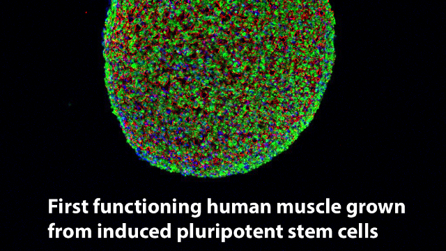 Engineers Grow Functioning Human Muscle from Skin Cells