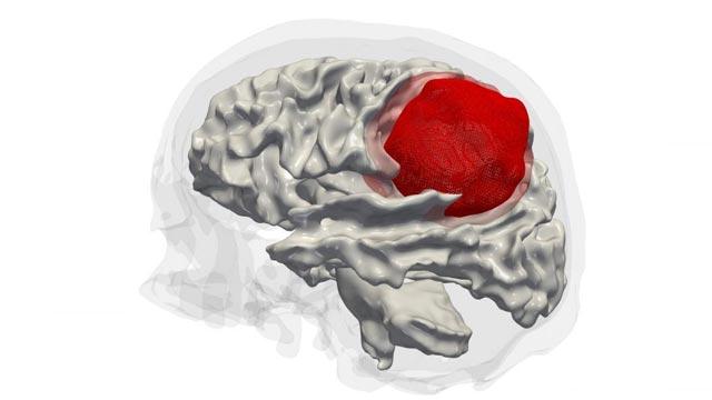 Epigenetic Analysis of Aggressive Brain Tumors