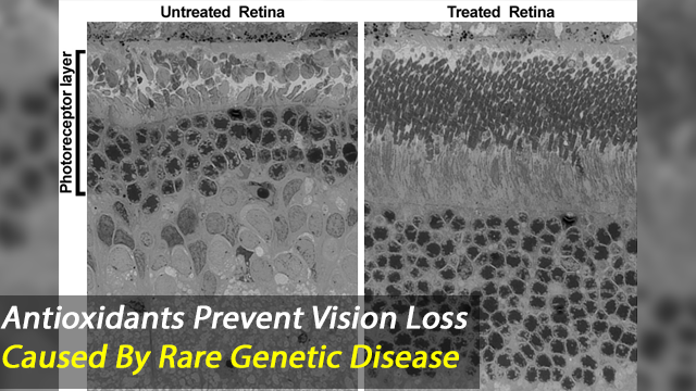 Evidenced-Based Antioxidant Therapy Prevents Vision Loss Caused by Smith-Lemli-Opitz Syndrome