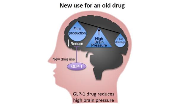Existing Diabetes Drug Could Lower Brain Pressure