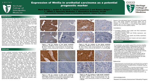 Expression of Wnt5a in Urothelial Carcinoma as a Potential Prognostic Marker