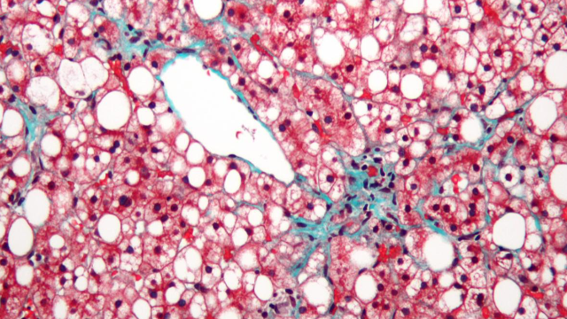 Fatty Liver Disease Affects Cells' Energy Factories