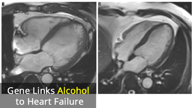 Faulty Gene Leads to Alcohol-Induced Heart Failure