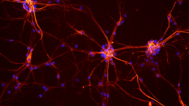 Teaching neurons to respond to placebos as potential treatment for Parkinson's