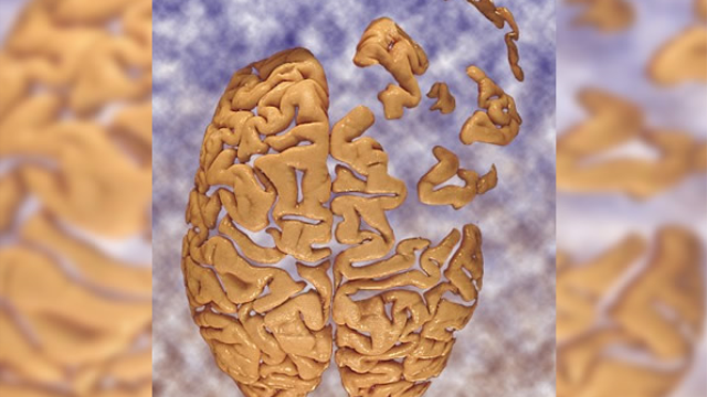 Environmental contaminants increase risk of dementia