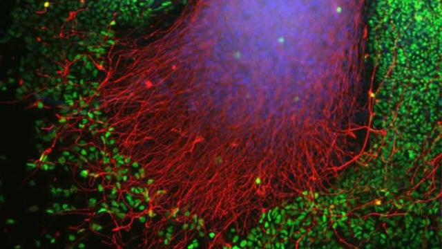 Stemming the flow: Stem cell study reveals how Parkinson's spreads