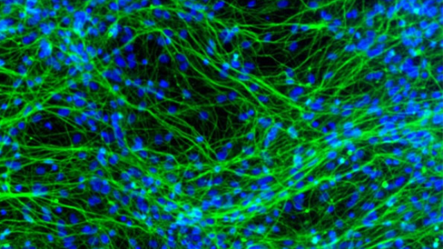 Stem cell specialization observed in the brain